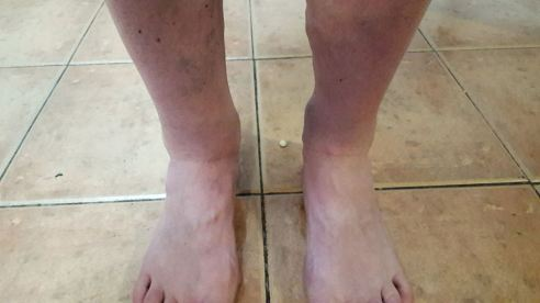 21st July- Swelling in my right ankle got worse than left leg